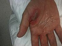 Name: Hand burnt by 1s battery.jpg