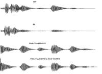 Name: sonar114.png Views: 148 Size: 22.8 KB Description:
