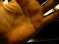 Name: stung hand.jpg Views: 145 Size: 75.3 KB Description: