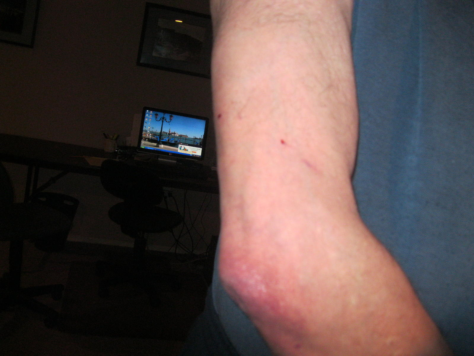 Name: IMG_2736.jpg Views: 64 Size: 144.5 KB Description: It only hurts for a minute.